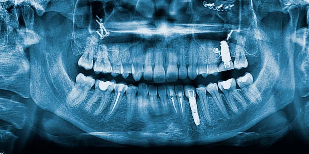 Aktien zu Implantate