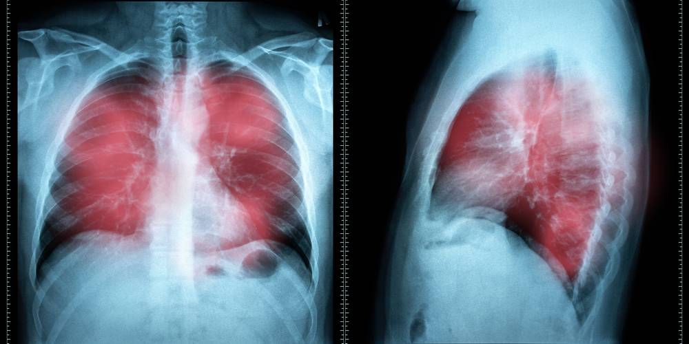 Aktien zu Lungenkrebs-Pharmazeutika