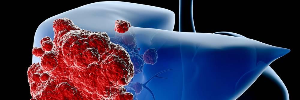 Aktien zu Leberkrebs-Pharmazeutika