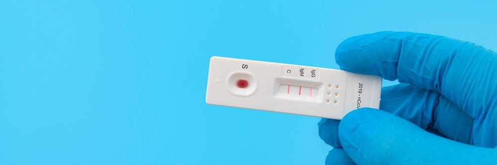 Aktien zu Virologische Diagnostik